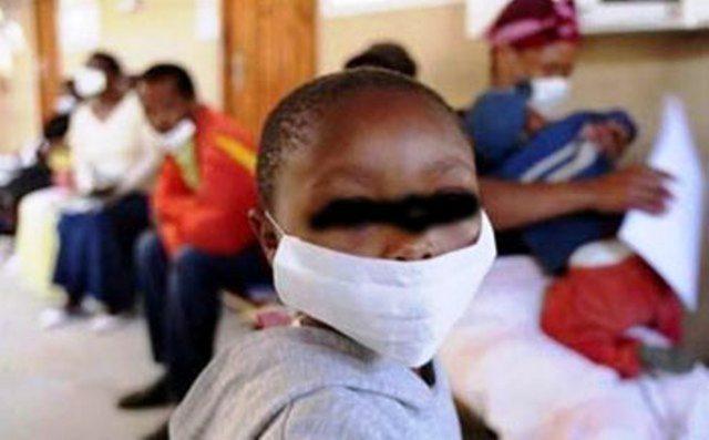 Tuberculose 300 personnes dépistées